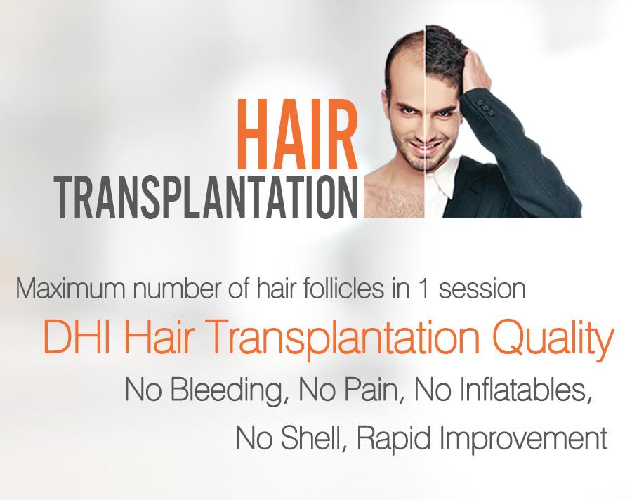 The Year S Best Hair Transplant Center Hair Transplantation